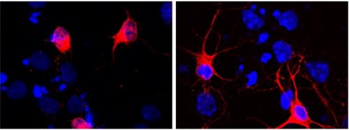 Immagine rappresentativa degli effetti benefici dell'anticorpo A13 sulle cellule neuronali (in rosso). A sinistra sono mostrati i neuroni 'malati', mentre a destra i neuroni 'curati' dall'anticorpo messo a punto dal team (fonte: rivista)