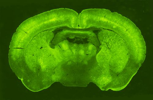 Image of the whole brain treated with the virus expressing the GFP reporter