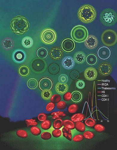 la morfologia dei globuli rossi alterata, individuata mediante segnatura olografica, è una caratteristica di molte anemie.