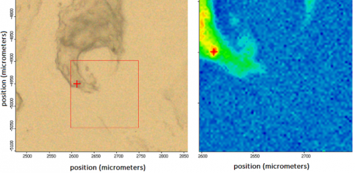Esempio di identificazione di idrossiapatite in calcificazione di Condorsarcoma di grado 1: a sinistra una immagine della morfologia e a destra la corrispondente mappa biochimica intorno a picco identificativo dell'idrossiapatite
